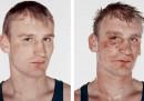 Prima e dopo il ring