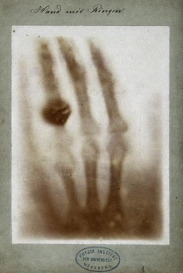 V0029523 X-ray of the bones of a hand with a ring on one finger
