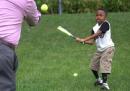 Un bambino di 10 anni con due mani trapiantate