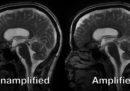 Il nostro cervello si muove come un budino, a ogni battito del cuore