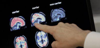 Il nuovo discusso farmaco contro l'Alzheimer